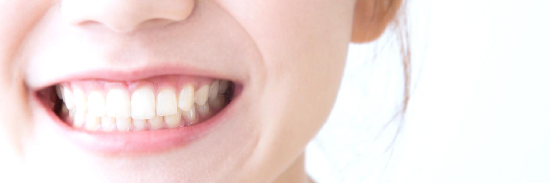 審美歯科〜くすのき歯科医院〜